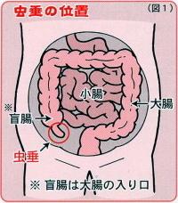 虫垂炎.jpg